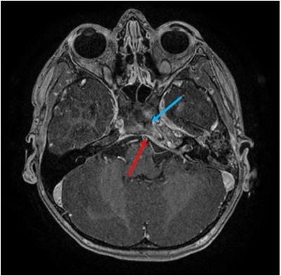 Gradenigo syndrome: A rare complication of otitis media