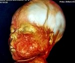 Hemimegalencephaly with prominent ipsilateral facial hypertrophy